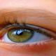 วุ้นตาเสื่อม